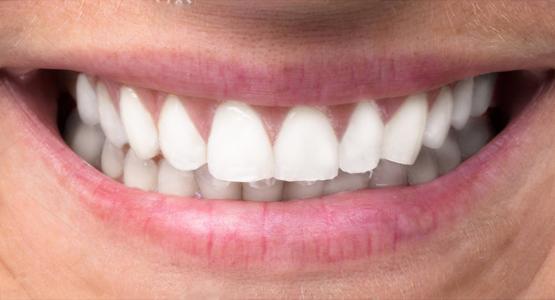 Teeth Whitening or Retouching